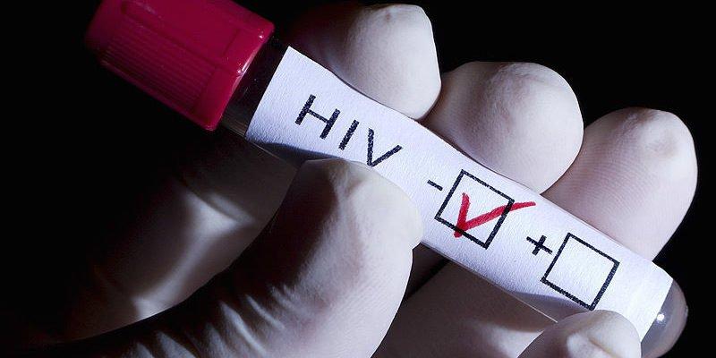 HIV âm tính là người không có dấu hiệu bị nhiễm HIV