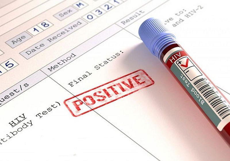 cach-doc-ket-qua-xet-nghiem-HIV